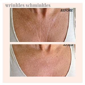 chest-wrinkles-before-and-after